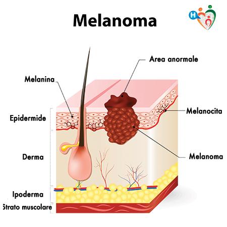 Immagine di un melanoma, visto in sezione