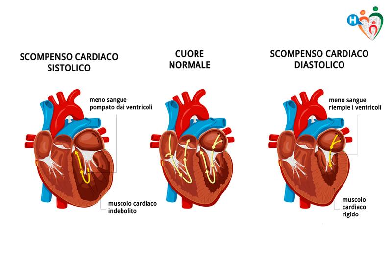 scompenso cardiaco diastolico e sistolico
