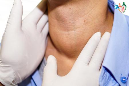 linfonodi ingrossati