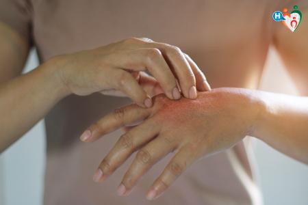 Immagine che raffigura mani che si grattano per il prurito