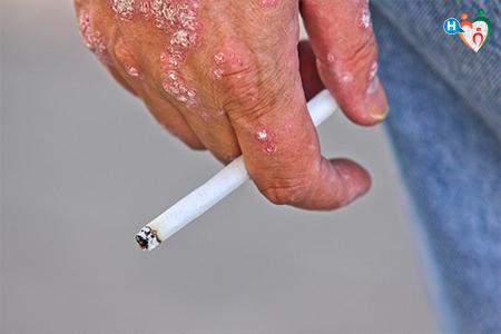 Immagine che ritrae una mano danneggiata dalla psoriasi che tiene una sigaretta