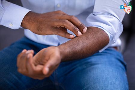 Immagine che raffigura braccia di un uomo affette da psoriasi