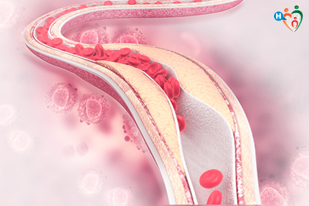 Immagine che raffigura un'arteria ostruita