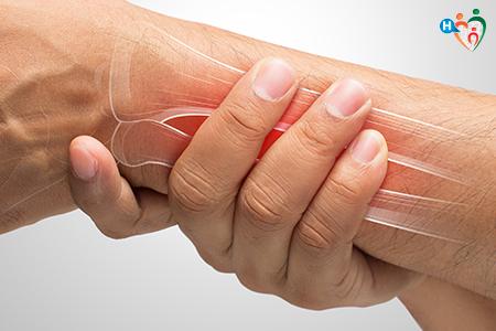 Immagine che ritrae i muscoli di un braccio indolenziti