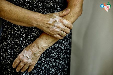 Fotografia che raffigura una donna con eruzioni cutanee