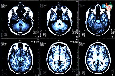 immagine che raffigura una scansione cerebrale
