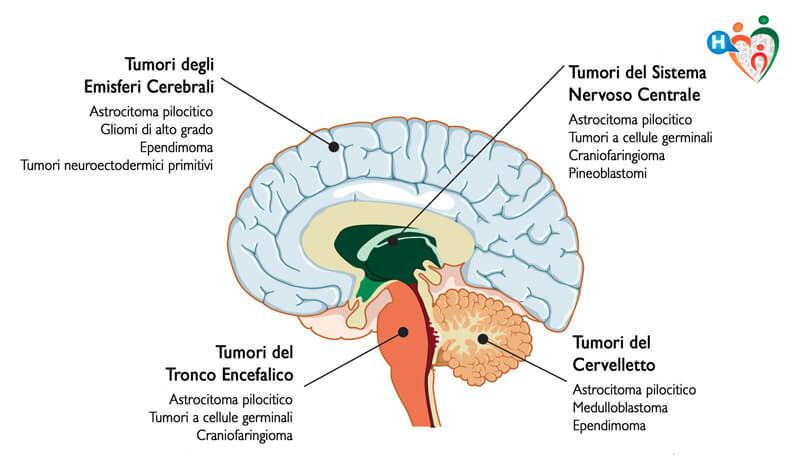 tumore alla prostata benigno o maligno quando si opera en