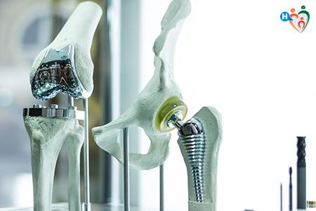 Immagine cha raffigura protesi di ginocchio e di anca