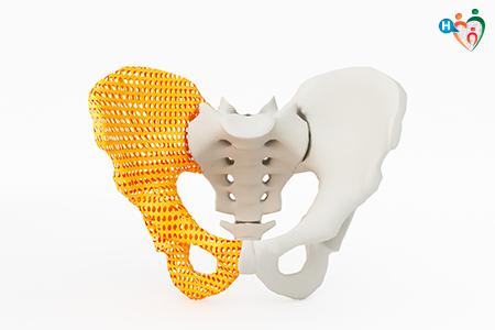 immagine che raffigura una protesi d'anca