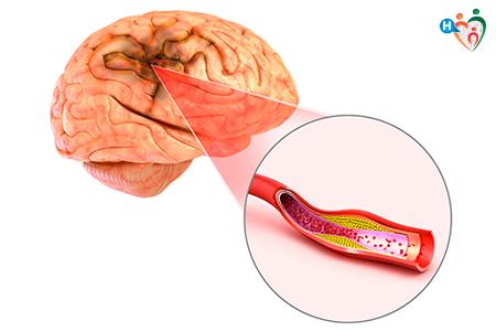 Immagine che raffigura il funzionamento dell'ischemia