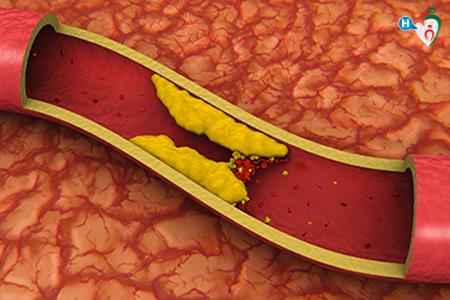 Immagine che ritrae un'arteria ostruita