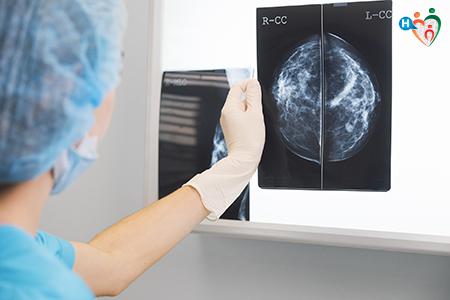Immagine che raffigura un medico che esamina una mammografia