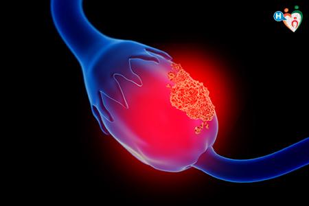 Immagine che ritrae un ovaio affetto da carcinoma