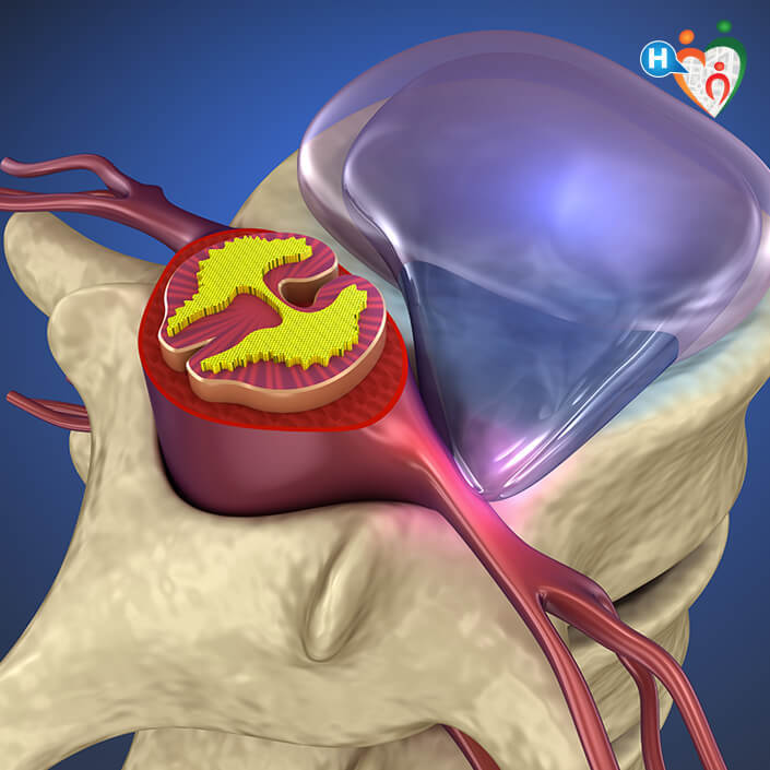 quali esercizi fare dopo lintervento chirurgico alla prostata