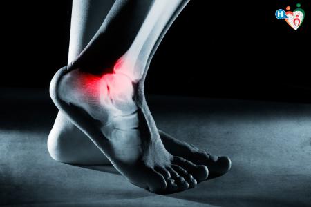 Immagine che raffigura una caviglia in radiografia