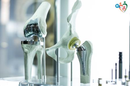 Immagine che ritrae protesi di anca e ginocchio