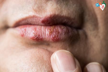 Fotografia di vescicole da herpes virus