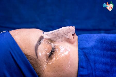 Immagine che ritrae una rinoplastica