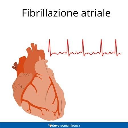Infografica che ritrae la fibrillazione atriale