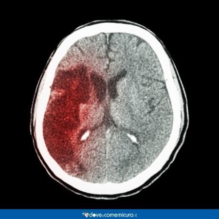 Immagine che raffigura una TAC di cervello con ictus ischemico