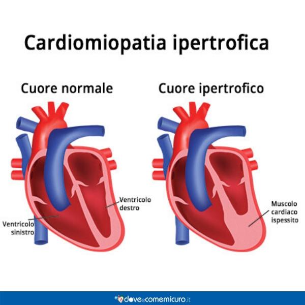 Infografica che raffigura il fenomeno della cardiomiopatia ipertrofica