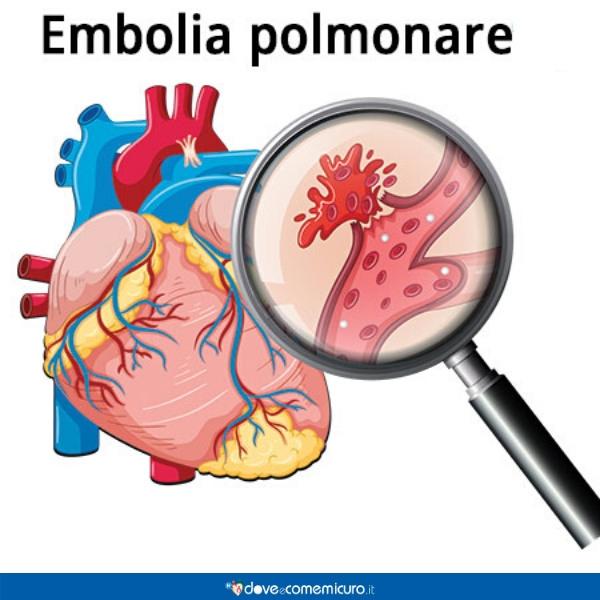 Infografica che ritrae un'embolia polmonare