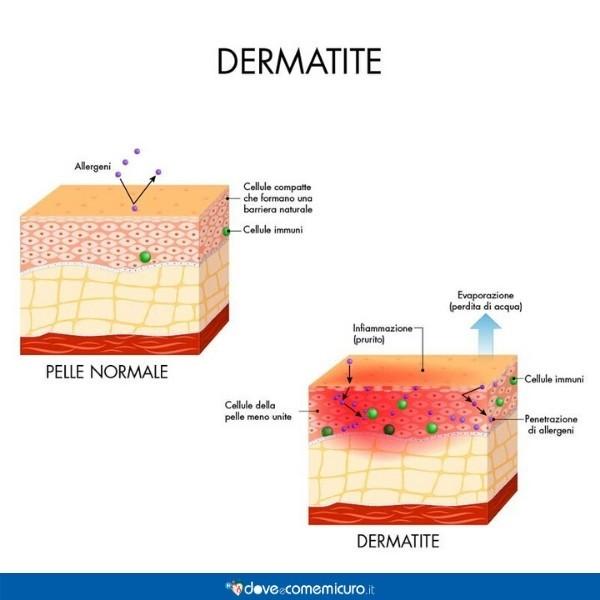 Immagine che illustra i sintomi della dermatite