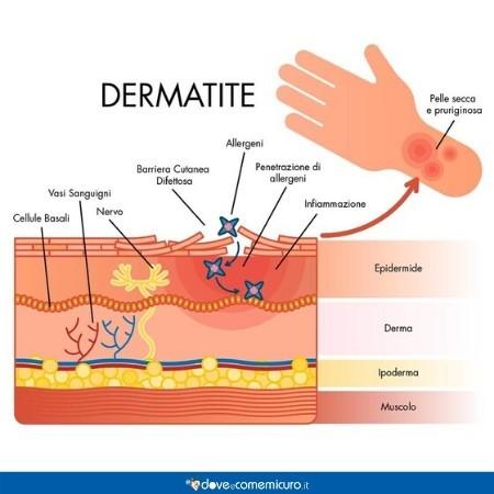 Immagine che ritrae pelle e mani con dermatite
