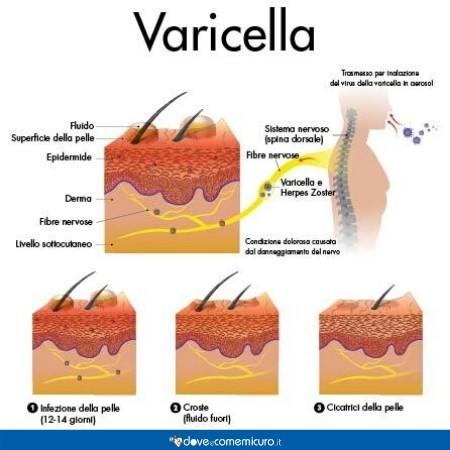 Infografica che illustra i sintomi della varicella