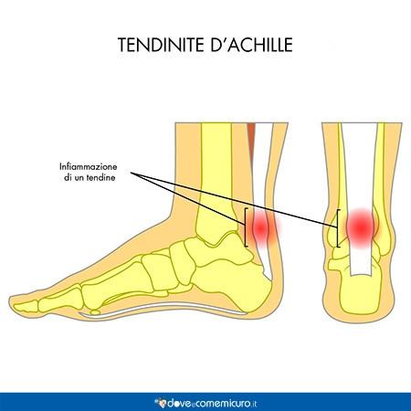 infografica del tendine di Achille