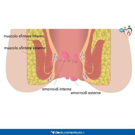 Infografica che ritrae i muscoli delle emorroidi interne