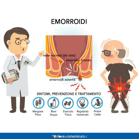 Infografica che illlustra le emorroidi e la corretta alimentazione