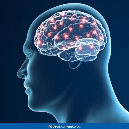 Immagine che ritrae un angioma cerebrale