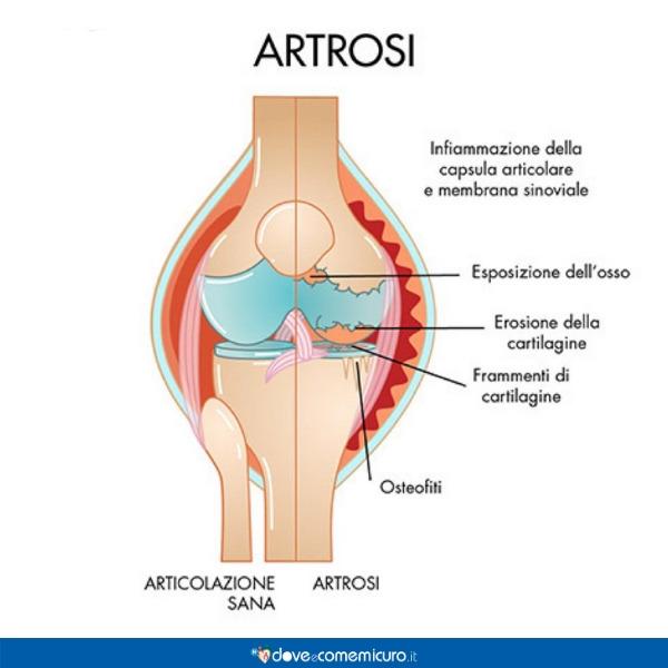 Infografica che ritrae un articolazione con artrosi
