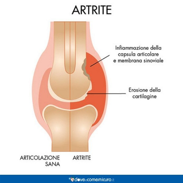 infografica che ritrae un'articolazione con artrite