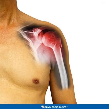 Immagine che ritrae un'articolazione della spalla infiammata