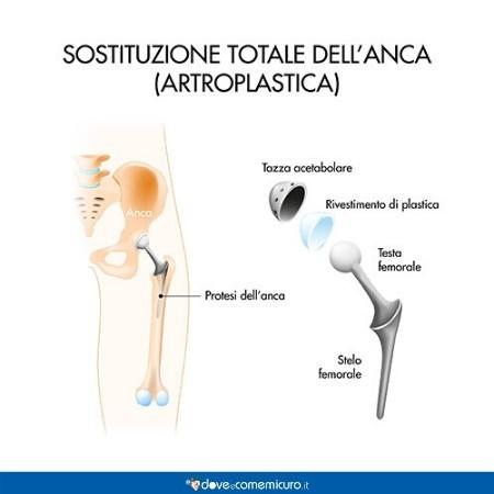 Infografica che ritrae una sostituzione totale di anca