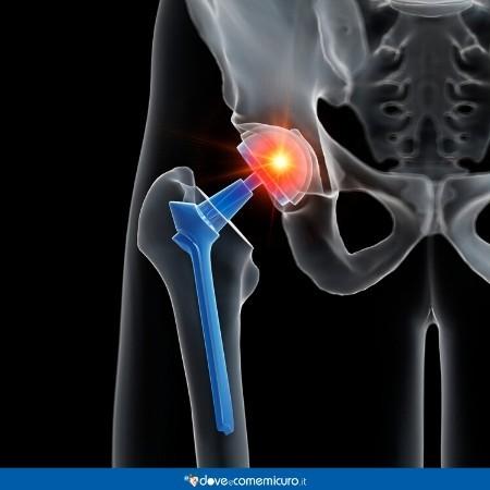 Immagine che ritrae una simulazione di protesi d'anca