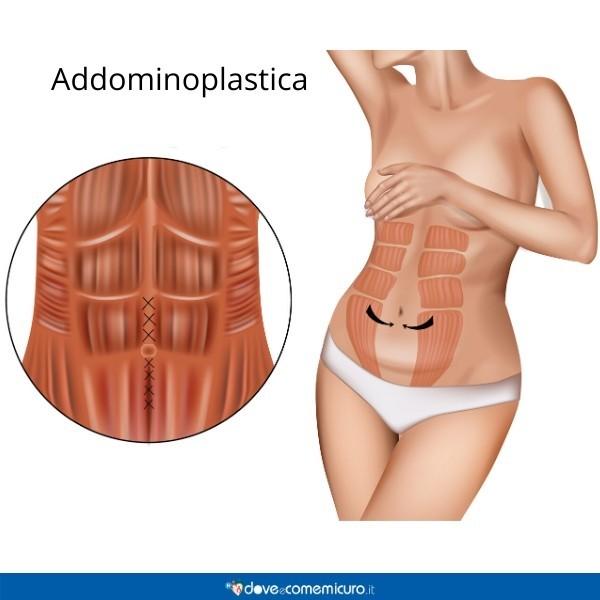 Infografica che mostra un intervento di addominoplastica
