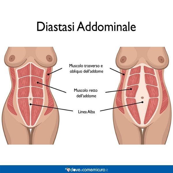 Infografica che ritrae la differenza muscolare tra persone con e senza diastasi addominale
