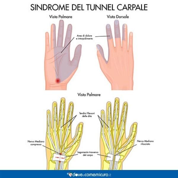 Immagine che mostra le zone colpite dall'infiammazione dovuta alla sindrome del tunnel carpale