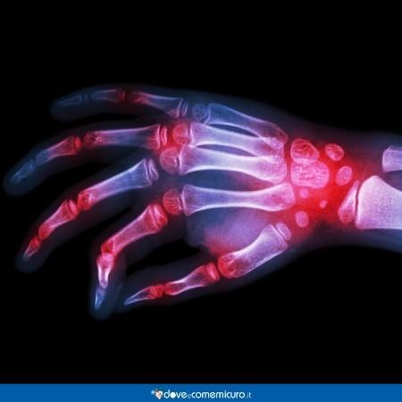 Immagine di una della mano di una persona che soffre di artrite