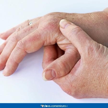 Immagine di un paio di mani affetta da atrite