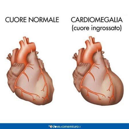 Immagine che mostra la differenza tra un cuore sano e uno ingrossato