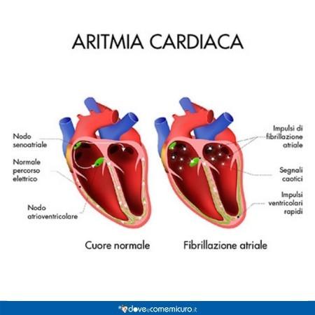 immagine che mostra la differenza tra un cuore sano e uno affetto da aritmia cardiaca