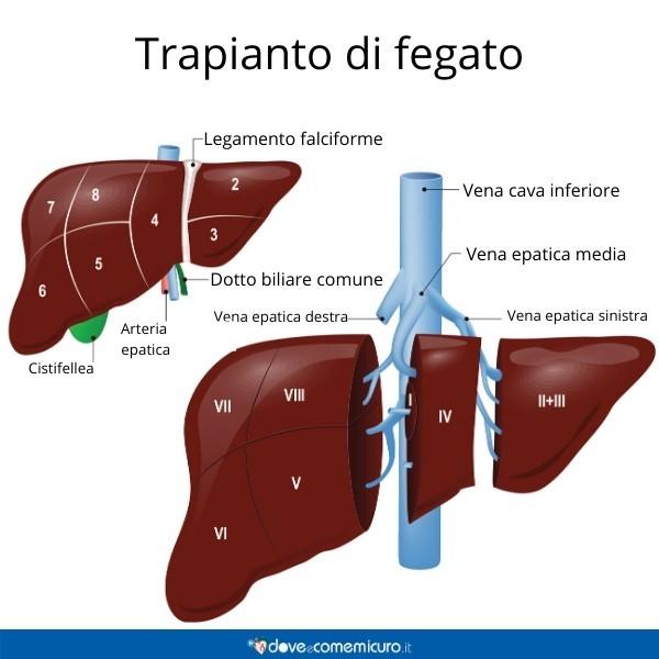 Infografica che ritrae le sezioni di fegato per il trapianto