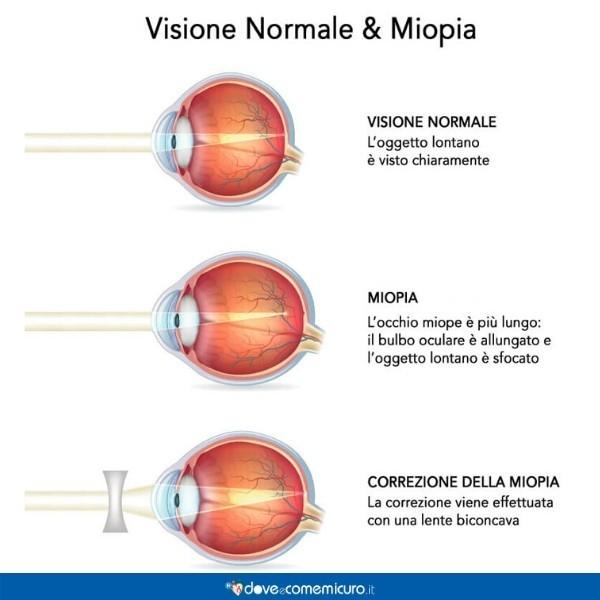 Infografica che mostra la differenza tra un occhio normale e uno miope, dopo la correzione