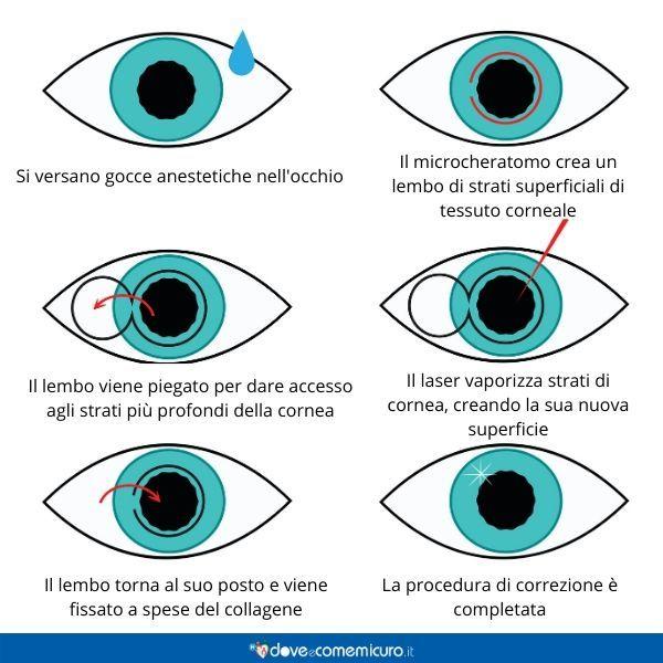 Infografica che mostra la procedura di correzione laser dei difetti visivi come la miopia