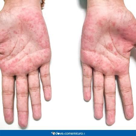 Immagine che mostra la sindrome dei guanti e delle calze su un paio di mani