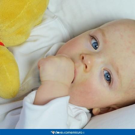 Immagine di un bambino con le guance rosse per via di un esantema